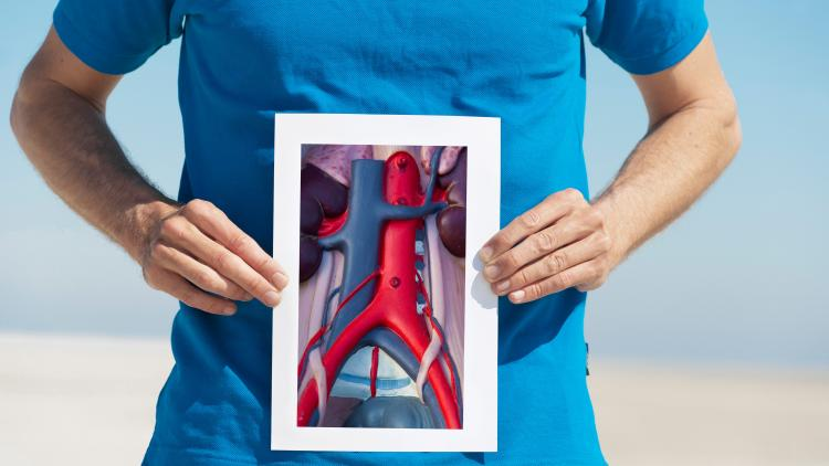 Vücudun gizli tehlikesi Aort Anevrizması