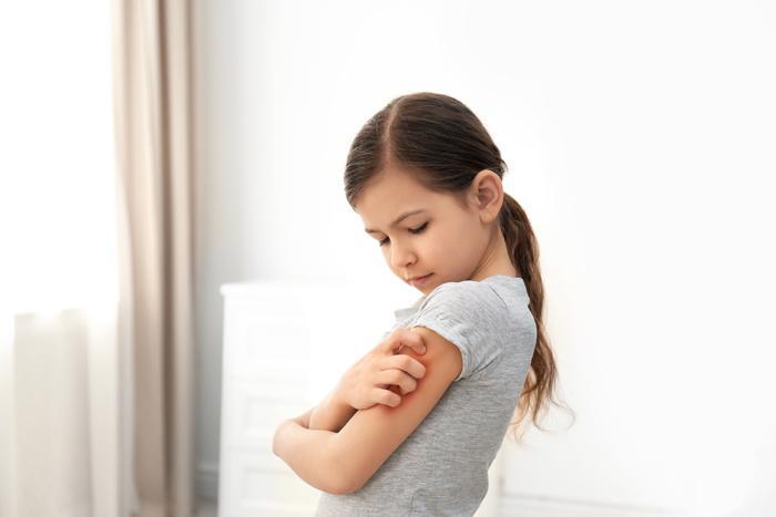 Çocuklarda ciddiye alınması gereken döküntüler
