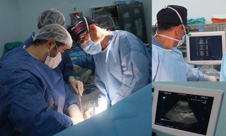 Karaciğer kanseri cerrahisinde ultrasonografi başarıyı artırıyor