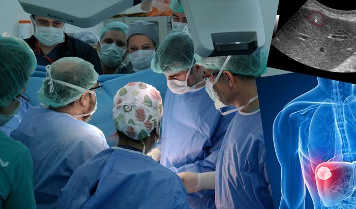 """""""Ameliyat olamaz"""" denen karaciğer kanseri hastalarına umut ışığı"""