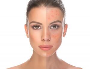 Retinoid cildi sivilcelerden ve yaşlanmaktan koruyor